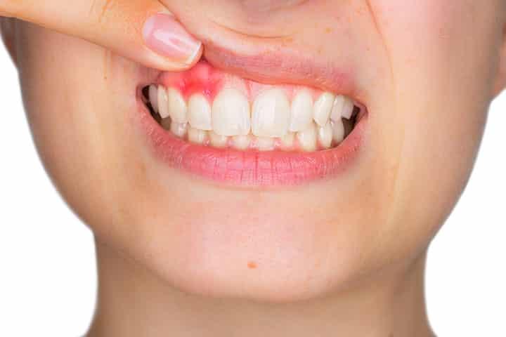 Is een tandvleesontsteking besmettelijk?